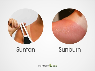 What-causes-sunburn-or-suntan