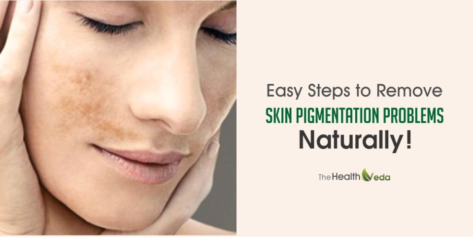 Easy Steps to Remove Skin Pigmentation Problems Naturally!