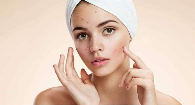 Health-Benefits-of-Honey-and-Cinnamon-to-Combats-Acne
