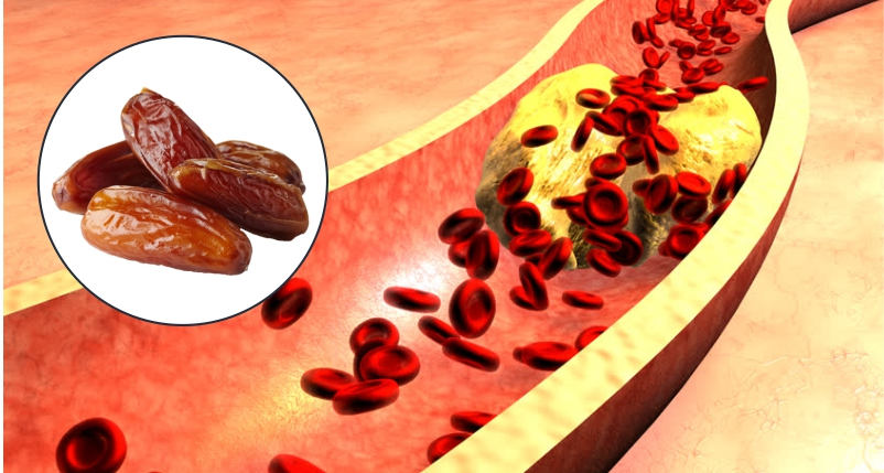 Eating-Dates-can-Help-Regulate-Cholesterol