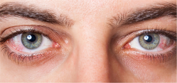 How to Get Rid of Eye Redness with Simple Remedies? Know Here!